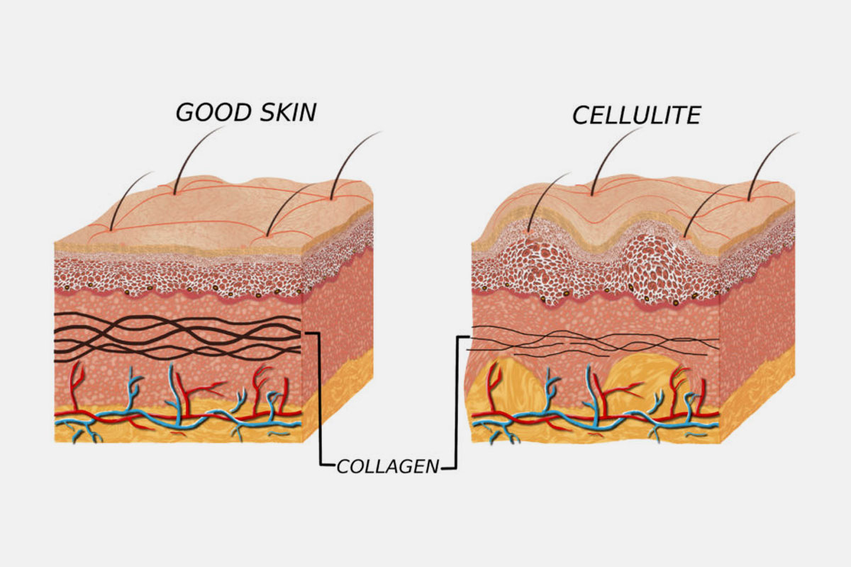 Some-Important-Facts-About-Cellulite,-Collagen,-and-Beautiful-Skin